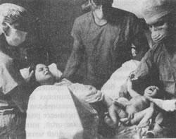 Боковой амиотрофический склероз клиника