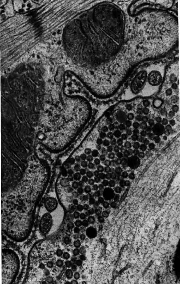 Соединение Нервно-Мышечное фото