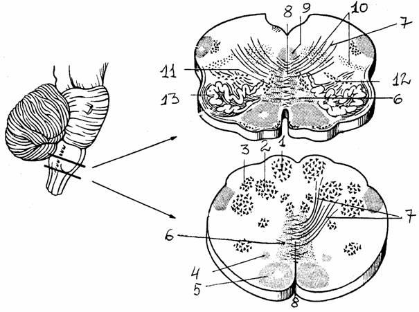 продолговатого мозга (на